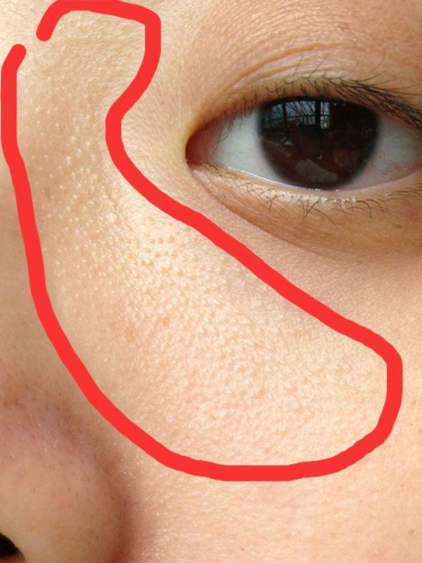 粉刺_最常见9大粉刺痘痘肌肤问题看看自己有几样?教你怎麼正确的护理