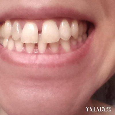 痘的原因_牙齒有縫隙怎麼辦?教你輕鬆矯正牙縫-色彩地帶